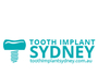 Tooth Implant Sydney